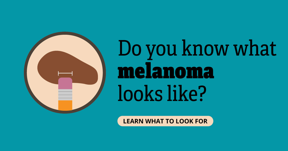 Do you know what melanoma looks like? Learn what to look for.